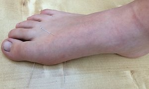 Acupuncture. acupuncture witney oxfordshire amy's foot